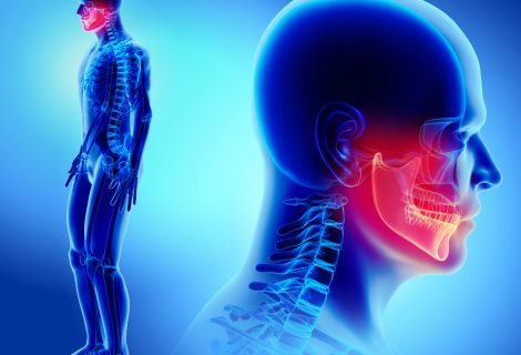 Cranio-Mandibuläre-Dysfunktion (CMD)